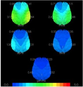 Read more about the article BRAIN HEALTH IQ
